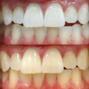 SherryWegner_before-after.jpg