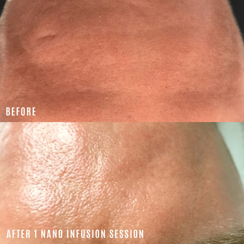 nano infusion before and after forehead