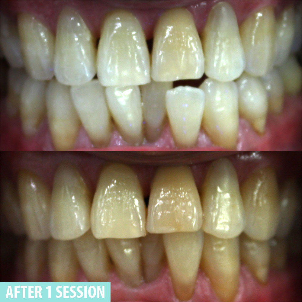 Mint Smilebar before and after case 2