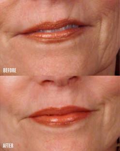 dermaroller-wrinkles-1-WEB_v2.jpg