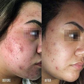 Mari_acne-BA.jpg