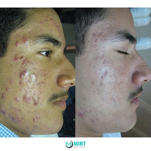 cystic-acne-treatment-vancouver.jpg