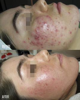 acne-clinic-Vancouver.jpg