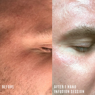nano infusion before and after eye area