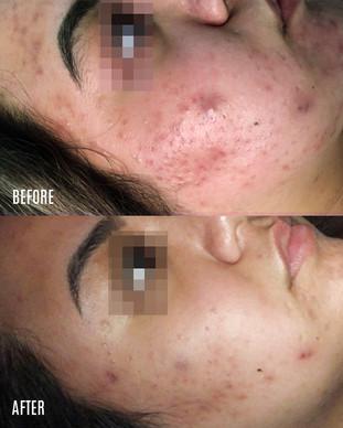 Mari_acne-BA-V2.jpg