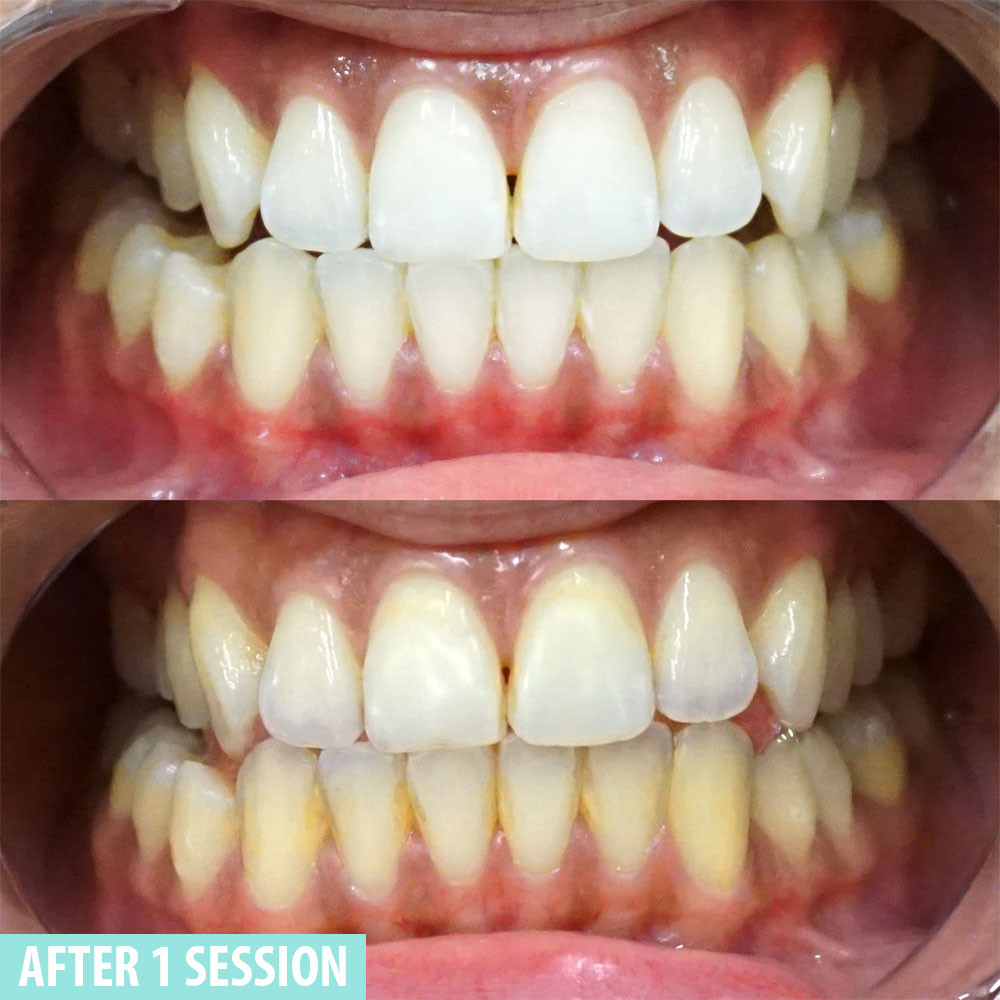 Mint Smilebar before and after case 1
