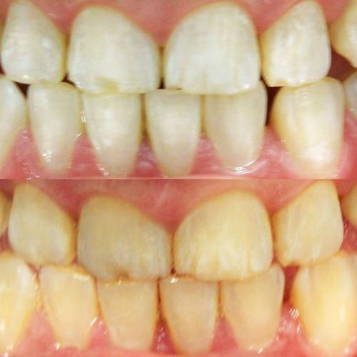Lindsay_before-after-v2.jpg