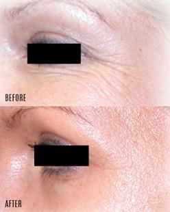 dermaroller-wrinkles-2b-1024x384.jpg