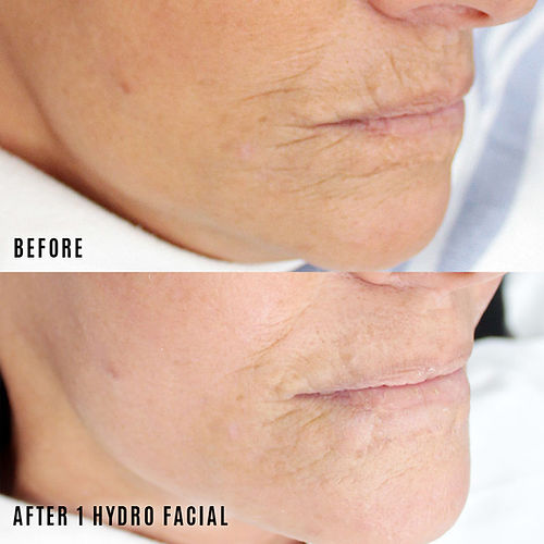 hydro facial before and after