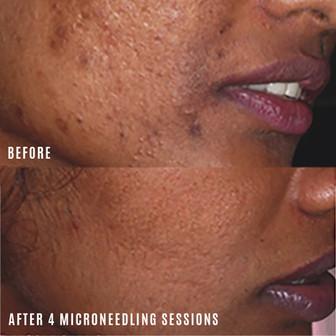 acne-scars-treatment-vancouver.jpg