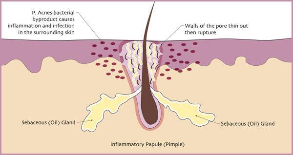 inflammatory papule