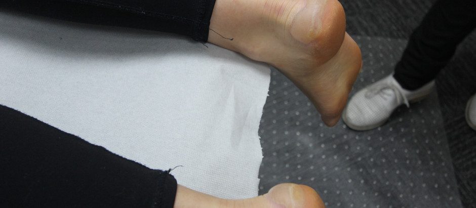 Why you should leave your blisters to the professionals...