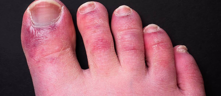 Did you know your toes can show signs of COVID-19?