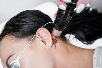 Laser-Tattoo-Removal-Our-Approach.jpg