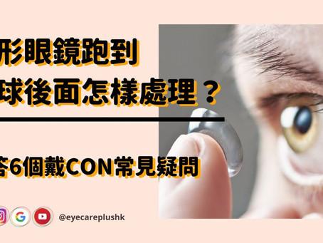 隱形眼鏡跑到眼球後面怎樣處理?解答6個戴CON常見疑問
