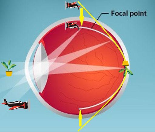 近視控制原理