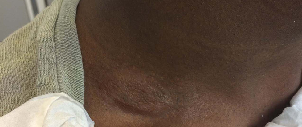 Captive State Prosthetic application on neck