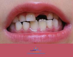 Tips moverse el diente