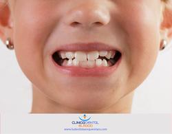 Caída de dientes