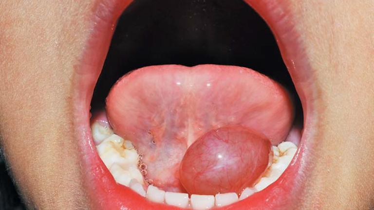 Curso de Medicina Oral e Biópsias. Retalhos para Cirurgia Oral e Periodontal. Praticas em cabeças de animais