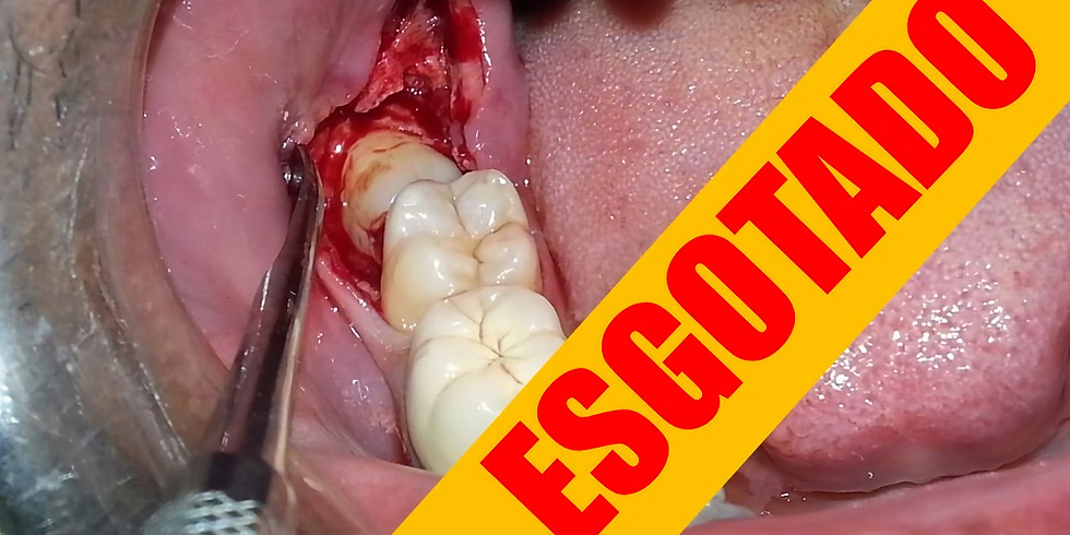 Cirurgia de Dentes Inclusos (impactados), Curso prático  24 horas de formação