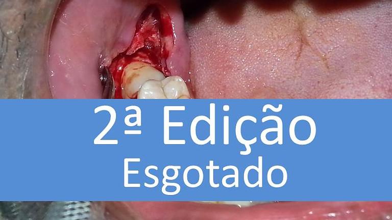 Curso prático de Cirurgia de Dentes Inclusos (impactados) 24 horas de formação