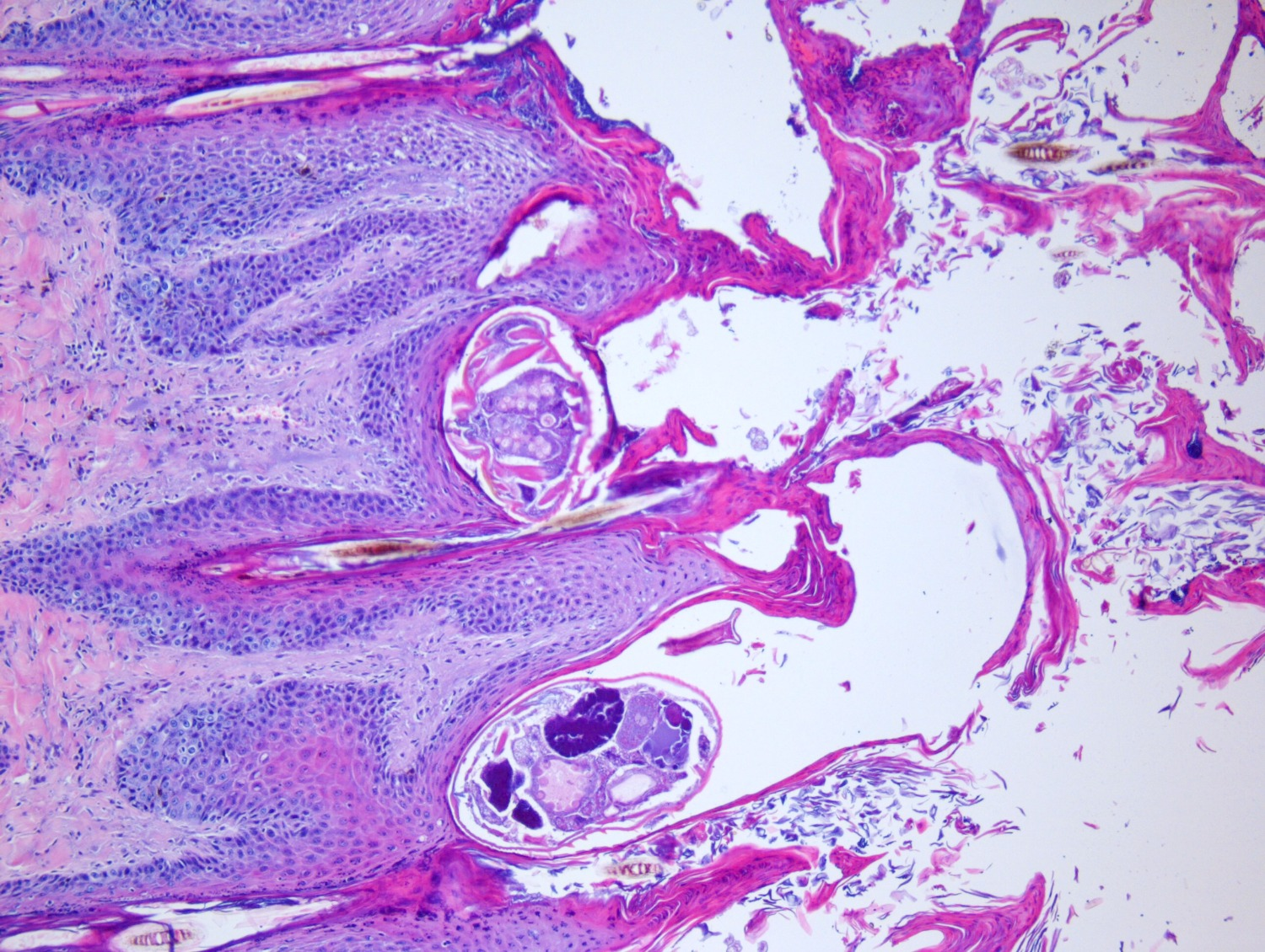 scabies 20x 3_edited