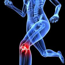 Cartilage Injuries to Knees