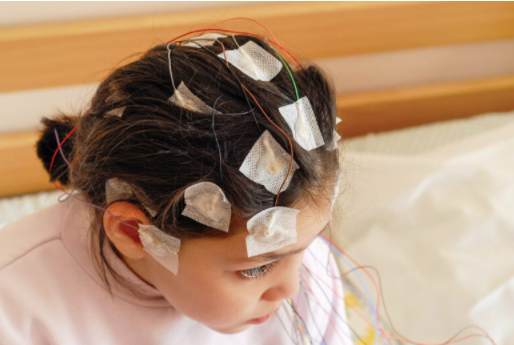 Ultimate Guide To The EEG Test