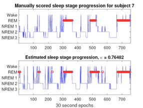 Accurate Sleep Monitoring At Home