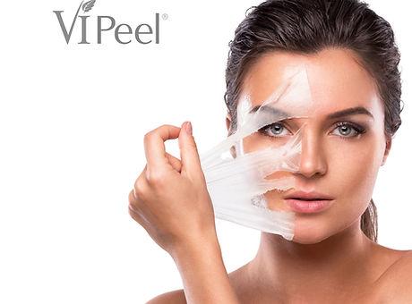 Peeling_Model.jpg