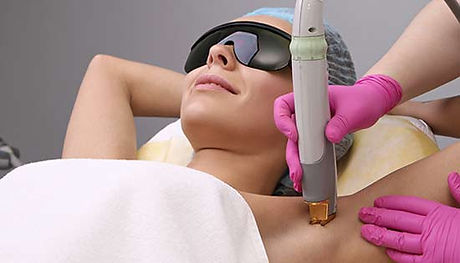 treatment-hair-removal-armpit.jpg