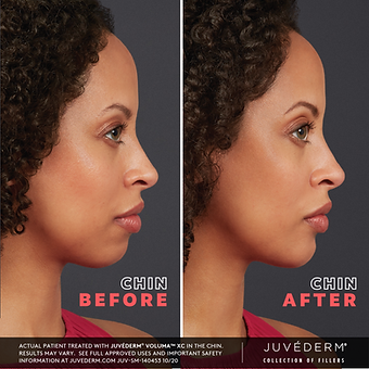 JUVEDERM Female B&A.png