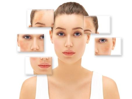 Melasma: disfunção de pigmentação da pele