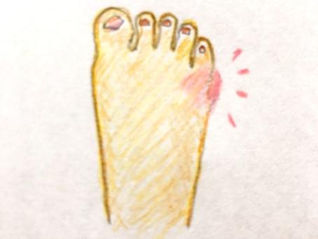 小指の捻挫とさといも湿布