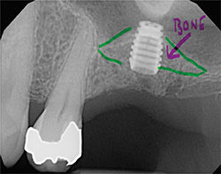 graft_bone_implant.jpg