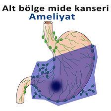 Alt bölge mide kanseri-2.jpg