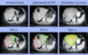 Laparoskopik ALPPS (tümörsüz karaciğer kısmını büyütme) ameliyatı - %113 büyüme