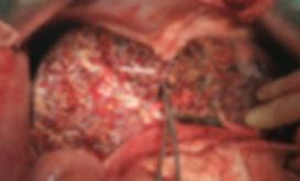 Santral hepatektomi ameliyatı sonrası kalan karaciğerin görünümü