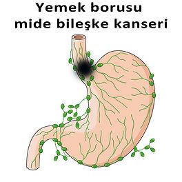 Yemek borusu mide bileşke kanseri.jpg