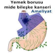 Yemek borusu mide bileşke kanseri-2.jpg