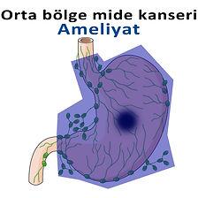Orta bölge mide kanseri-2.jpg