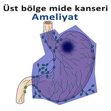 Üst bölge mide kanseri-2.jpg
