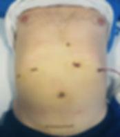 Karaciğrinin sol yarısı kapalı yöntemle alınan hasta