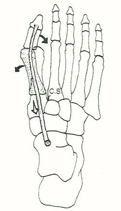 外転外反母趾