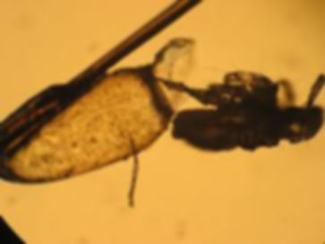 A head louse nypmh hatching fro shell