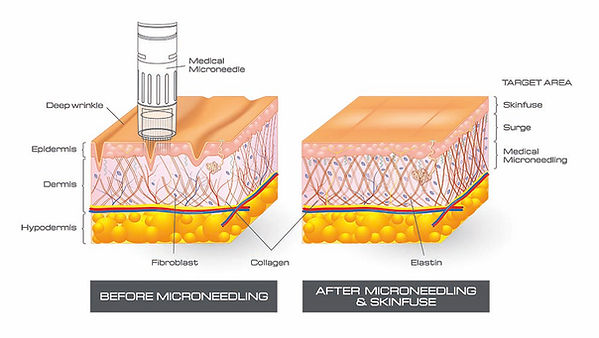 SF_Skin_Cross_Section (2).jpg