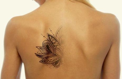 Tattoo-Removal-Final.jpg