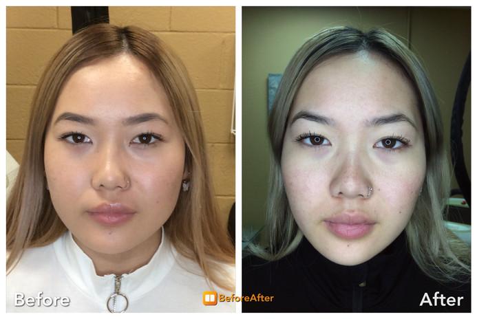 Masseter Botox Injection for Jawline Sli