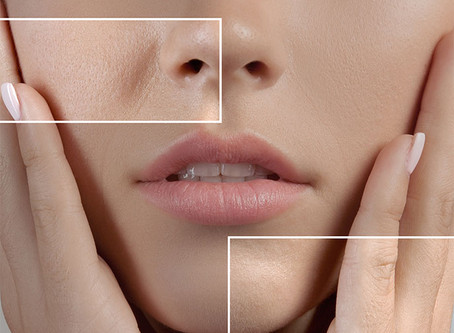 How To Minimize The Appearance Of Large Pores?